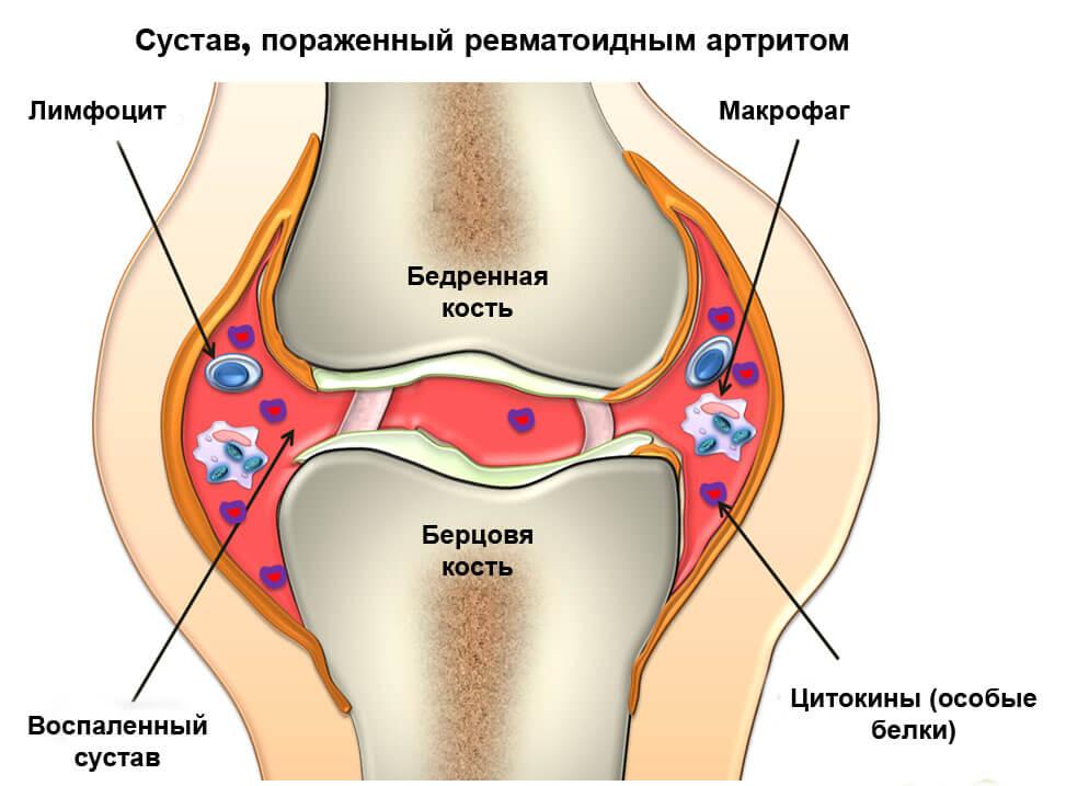 полиартрит суставов суставы рук и ног