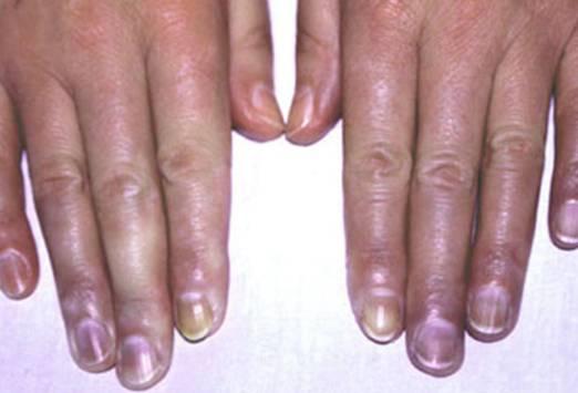 От чего синеют ногти